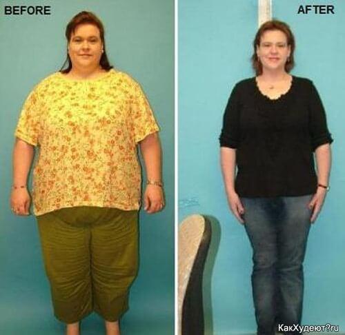Худоба уменьшение желудка для похудения, перетяжка и