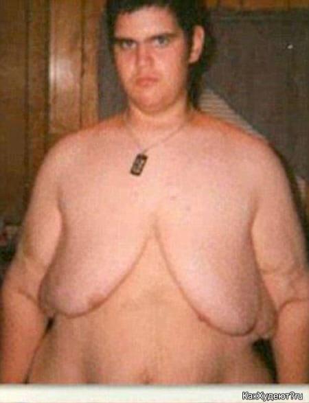 Жирный подросток в 16 лет